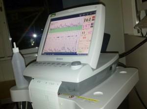 CTG övervakning 12 timmar innan nedkomst