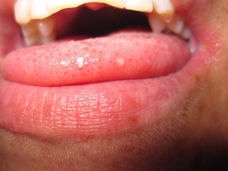 bli av med blåsor på tungan